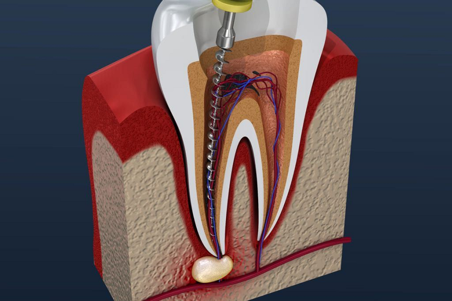 Root Canal and Process for Treatment